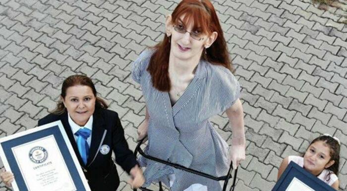 Turkinja najviša žena na svijetu: Ušla u Guinnessovu knjigu rekorda